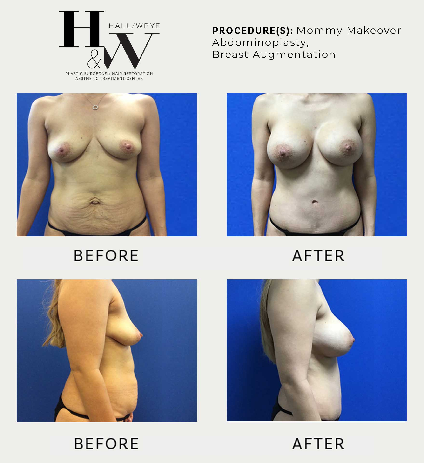 Hall and Wrye Plastic Surgeons in Reno NV – Breast Lifts – Facelifts – Cosmetic Surgery and Aesthetic Treatment Services